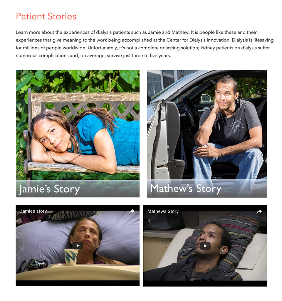 Center for Dialysis Innovation at the University of Washington: CDI Patient Stories Feature